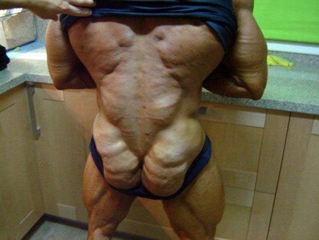 Не увлекайтесь стероидами - тело, ужас.
