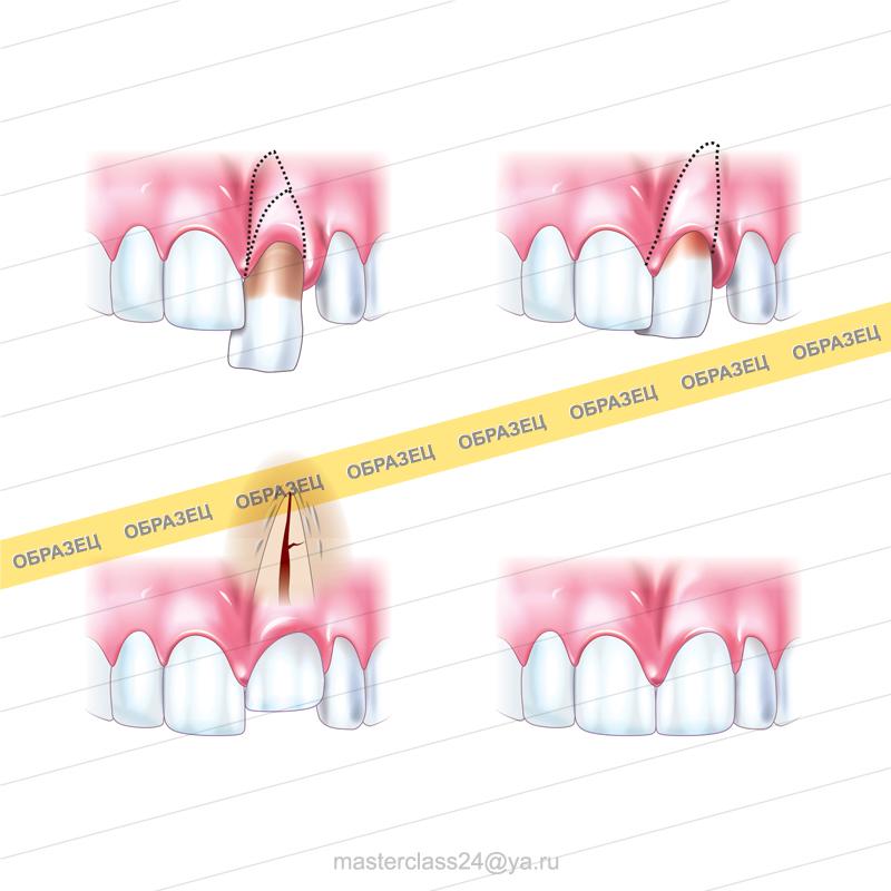 Стоматологическая иллюстрация. 100% вектор