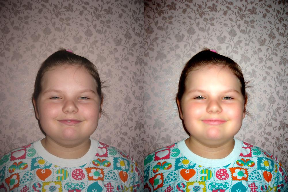 Улучшение фото лица скрытие дефектов