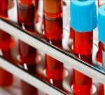 Правильно расшифруем анализ крови
