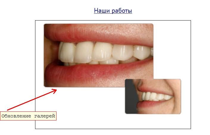 Комплексное поисковое продвижение сайта стоматологии