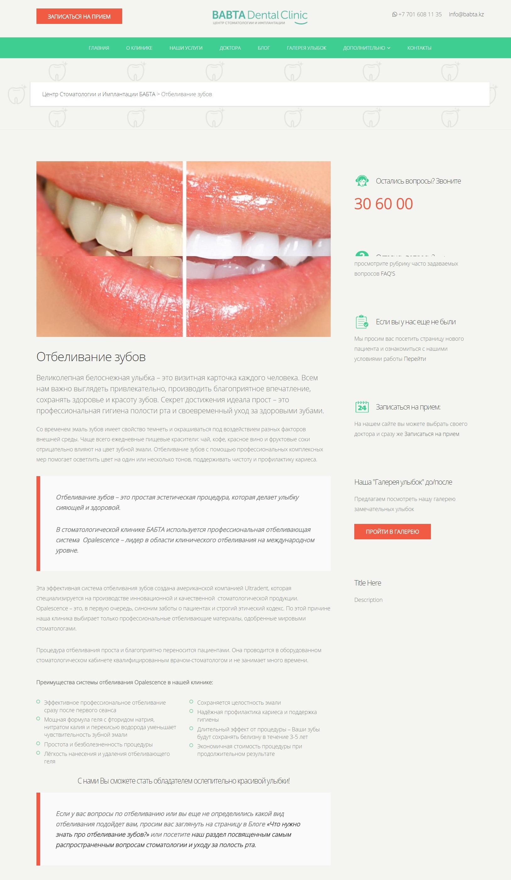 Услуги стоматолога: Отбеливание зубов