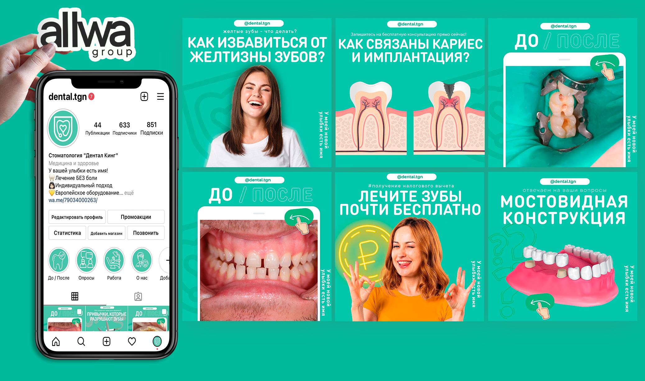 Ведение аккаунта в Instagram - Стоматология
